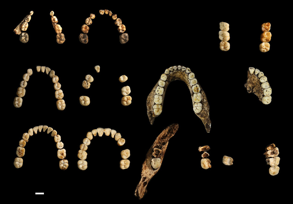 Teeth from the Dinaledi Chamber