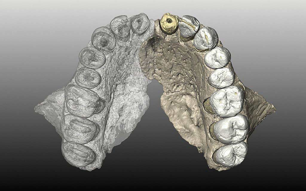 Misliya maxilla, mirrored in a CT rendering