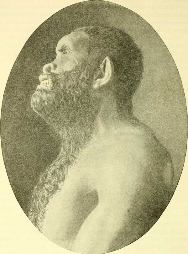 Neanderthal reconstruction in profile by Guernsey Mitchell