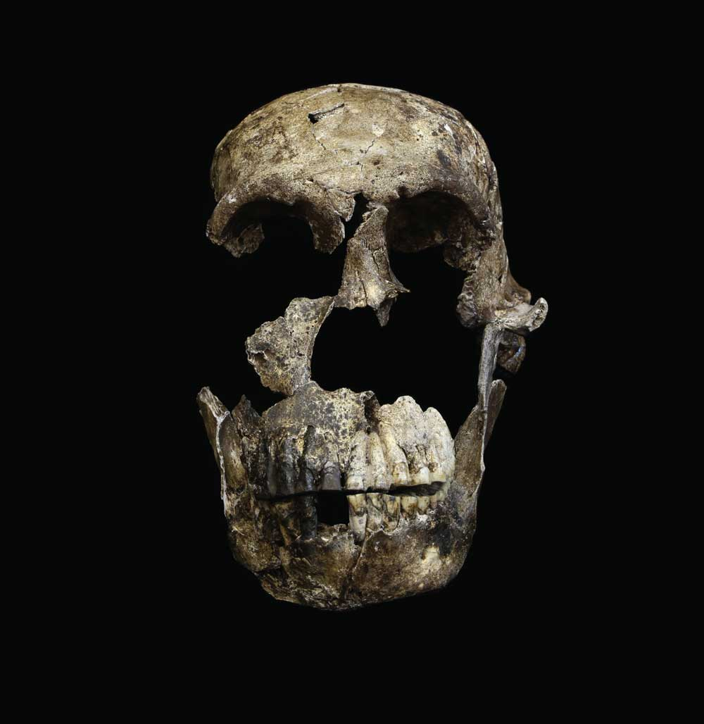 Neo skull frontal view